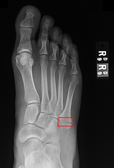 broken_foot
